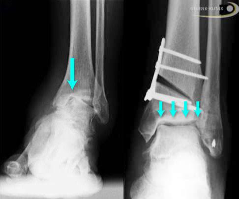 قبل وبعد جراحة إعادة تموضع عظمة الساق (جراحة مواءمة العظام)