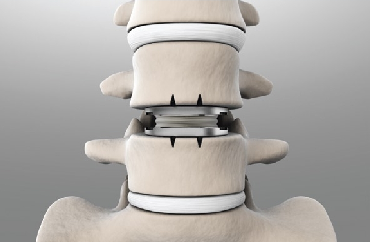 Artificial spinal disc or disc replacement