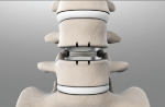 mportant for the good results of the lumbar disc prosthesis is mobility of the implant in all directions.
