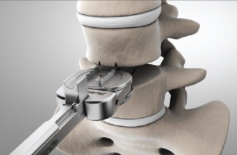 biomimetic lumbar artificial intervertebral disc Spinal kinetics inc, the designer and manufacturer of the m6 artificial disc,  announced total implantations of the company's m6-c cervical and.