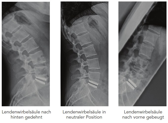 X-ray control of a M6-L disc prosthesis after transplantation