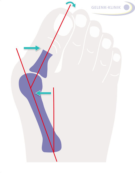 The operation of the Hallux valgus (bunion) corrects the deformity of the big toe, which tilts toward the outside of the foot.