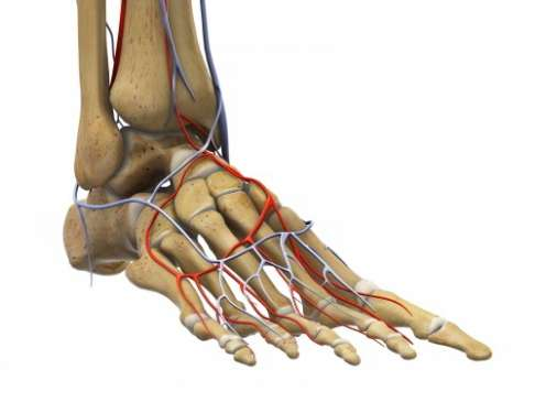Circulatory disorders are contraindications to bunion surgery