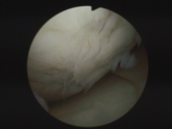 Arthroscopic image of a 45 year old patient, with clearly visible damage to the cartilage surface of a knee-joint. The surface is no longer smooth and strong, but rough and vulnerable as a result of damage.