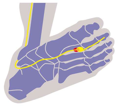 View of Morton's neuroma foot from the below
