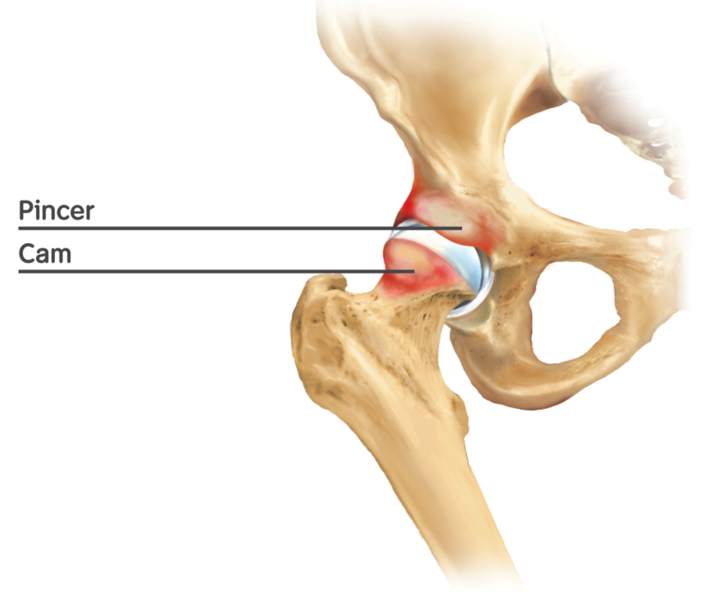 Chronic hip pain can be treated by arthroscopy of the hip