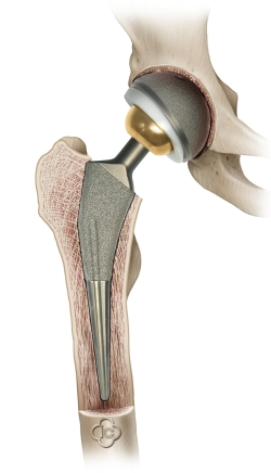 Hip Endoprothestis Saggital View