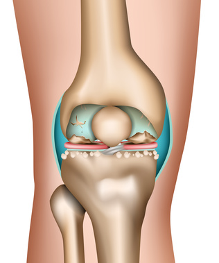 There are many causes for painful worn cartilage in the knee joint.