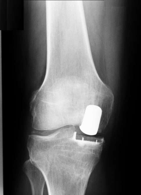 Partial knee prosthesis