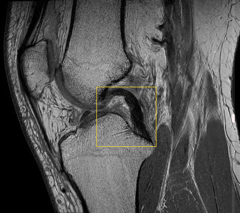 MRI of a knee with intact posterior cruciate ligament