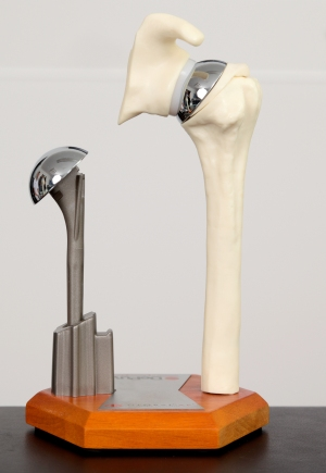 Prosthesis for total shoulder replacement or total shoulder arthroplasty