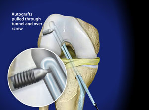 Approach to the reconstruction of the anterior cruciate ligament (ACL)