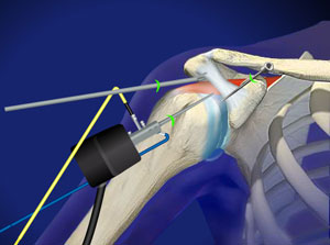 Arthroscopic surgery of shoulder impingement