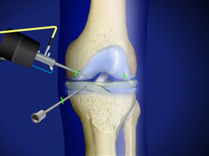 Arthroscopic knee surgery is a joint preserving therapy