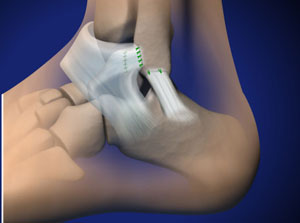 Foot specialist approach to ankle ligament reconstruction