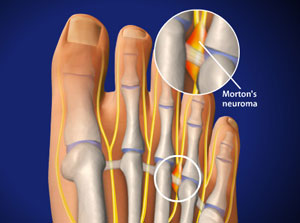 Houston morton's neuroma surgery