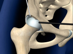 Hip specialist approach to treating osteoarthritis of the hip