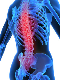 Expert Diagnosis of Orthopaedic Spine Diseases