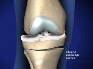 Knee realigment can prevent osteoarthritis of the knee