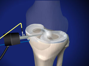 Knee specialist approach to menisc repair