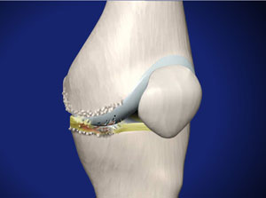Specialist approach to osteoarthritis of the knee