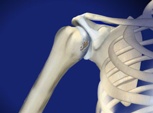 Shoulder specialist approach to shoulder arthritis