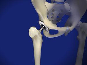 Osteoarthritis of the hip may require total hip replacement surgery