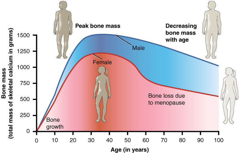 Diagram shows the average development during the lifetime of a human. Loss of bone mineralisation and density often goes unnoticed by the individual.