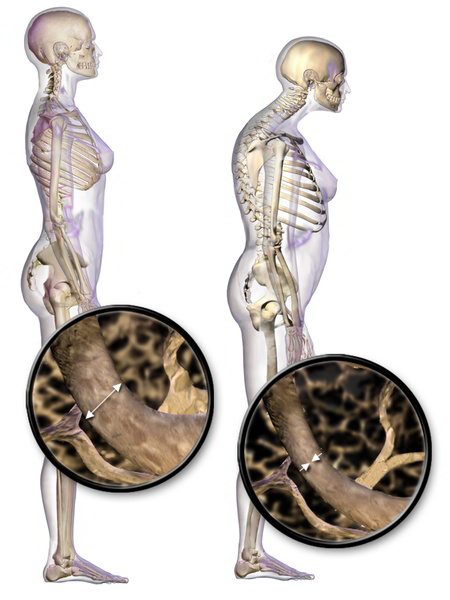 Une fracture vertébrale ostéoporotique