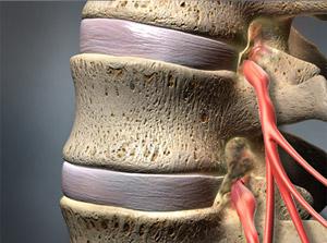 Эпидуральная катетеризация по методу Раца является признанным методом лечения радикулопатии, обусловленной поражением нервных корешков или хронической боли в спине.