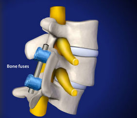 Orthopedic Spine diagnosis: Spondylolysthesis
